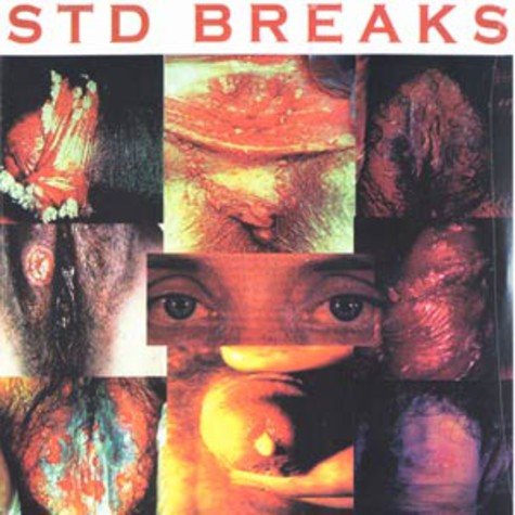 D-Styles - Sexually Transmitted Disease Breaks